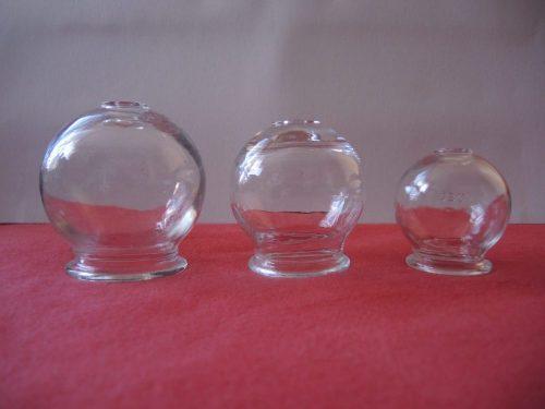 Basiskurs Schröpfen für Fachkundige: Gläser zum Schröpfen